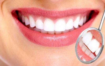 Visita odontoiatrica + igiene dentale